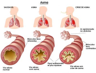 Riassunto asma